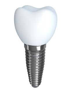 Từ vựng implant